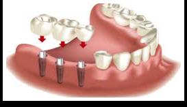 implantant2